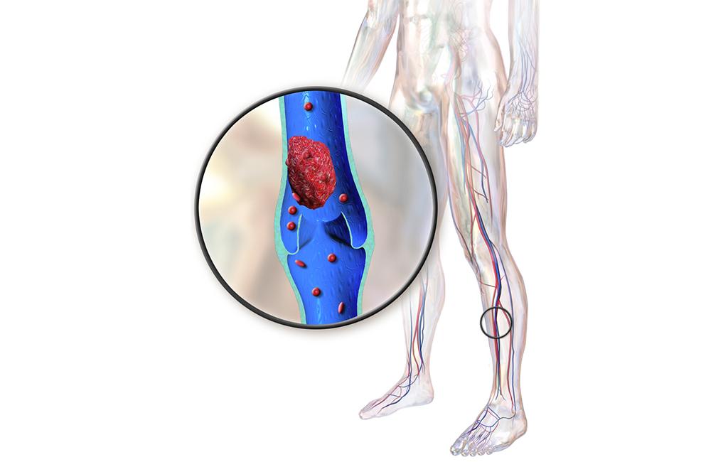 portalo venų trombozė svorio kritimas)