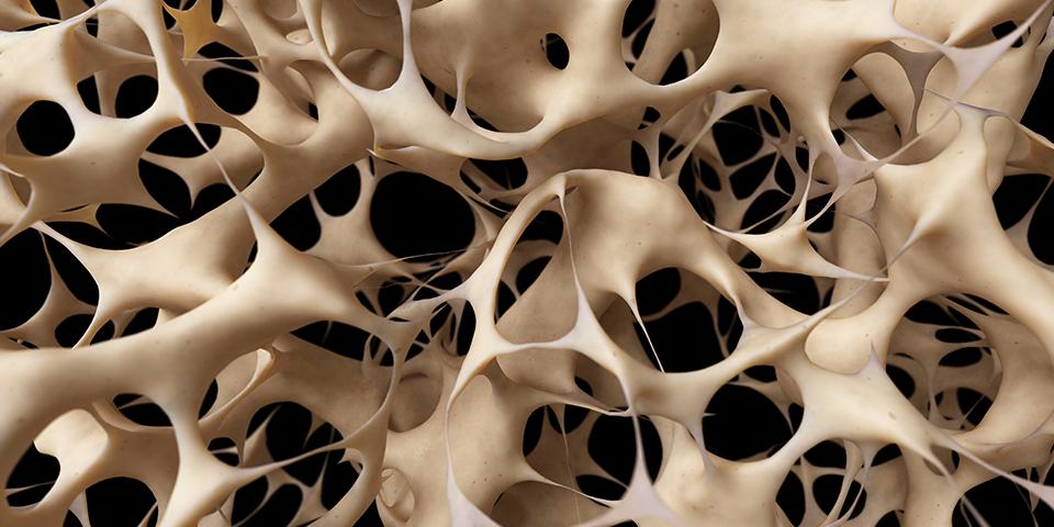 Svorio sumažėjimas dėl osteoporozės. Akmenės rajono savivaldybės sveikatos biuras