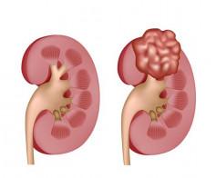 Inkstų ir šlapimo takų ligos