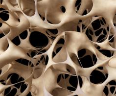 Osteoporozės priežastis