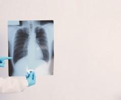 Nuo šiol Panevėžio klinikoje ir rentgeno tyrimai!