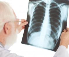 Tuberkuliozė - globalinė problema